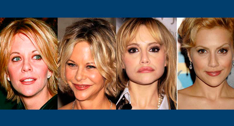 15 Celebs with swollen lips